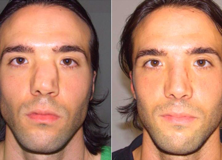 Изменение формы носа при переломе