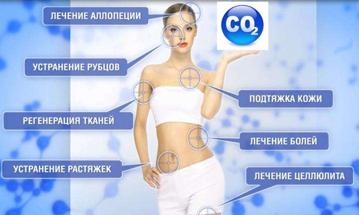 Применение карбокситерапии