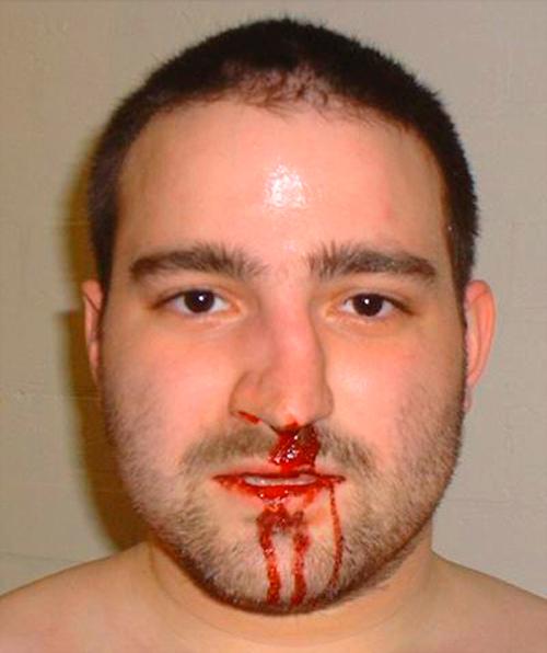 Обильное кровотечение из носа во время перелома