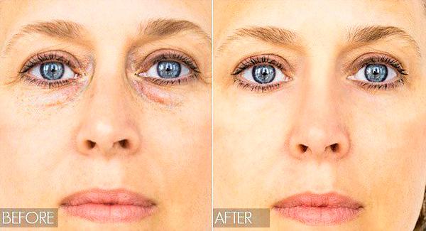 Микротоковаяч терапия показана при мешках под глазами