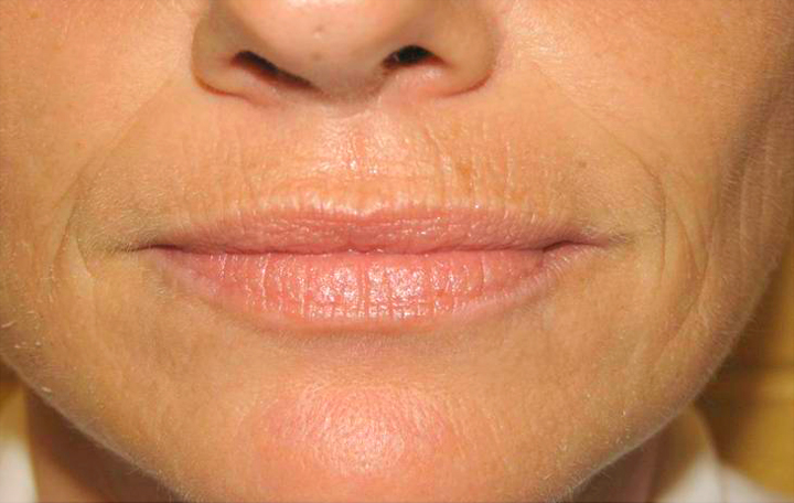 Возрастные морщины над верхней губой