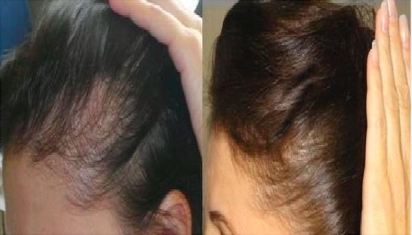 Микротоковая терапия используется при облысении