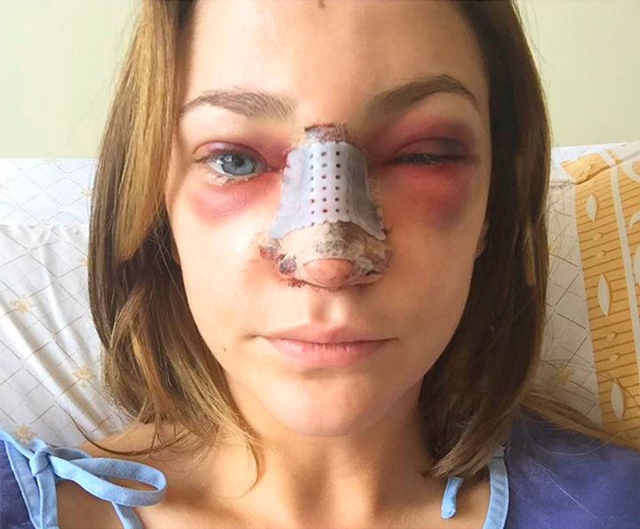 Отек и подкожное кровоизлияние сломанного носа