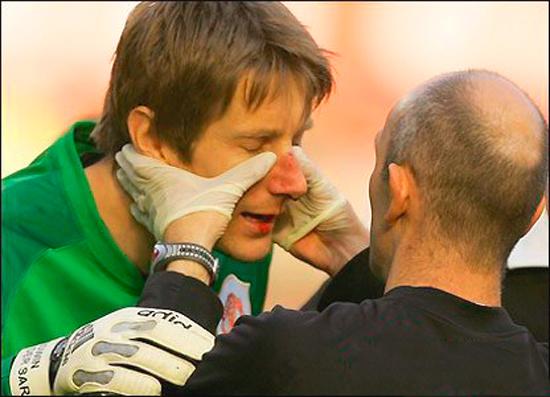 Пальпация при осмотре травмированного носа
