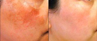Микротоковаяч терапия показана при пигментации кожи