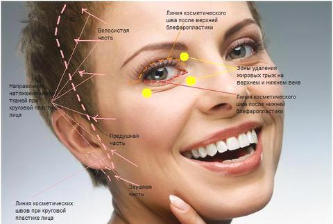 Схема пластики лица