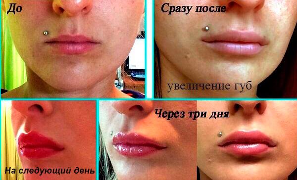 Сколько стоит увеличить губы в москве цена