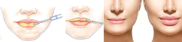 Процесс липофилинга губ