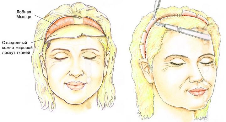Схема омоложения лица