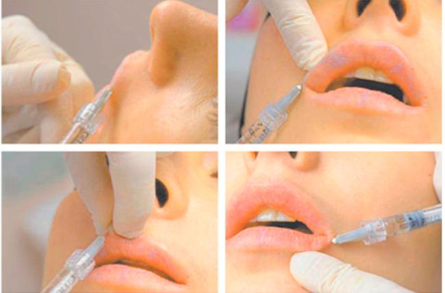 Процедура проведения коррекции губ