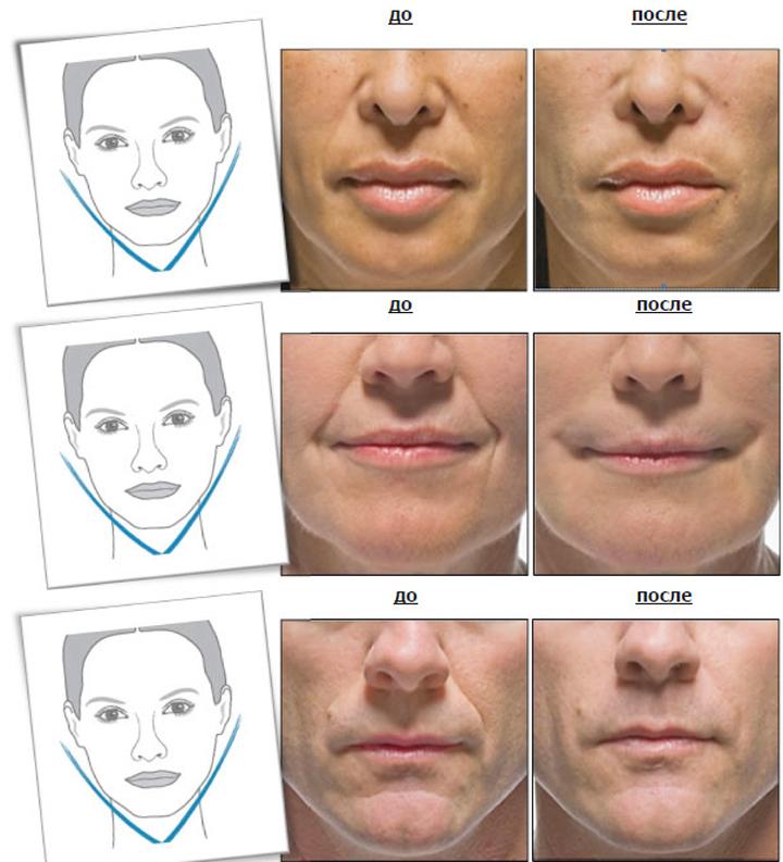 Радиесс-коррекция до и после
