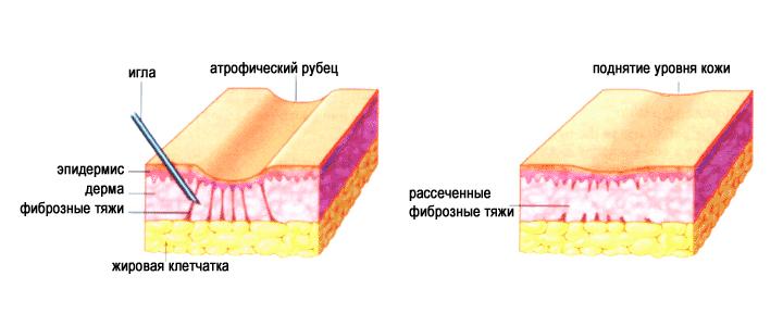 Рубец на коже