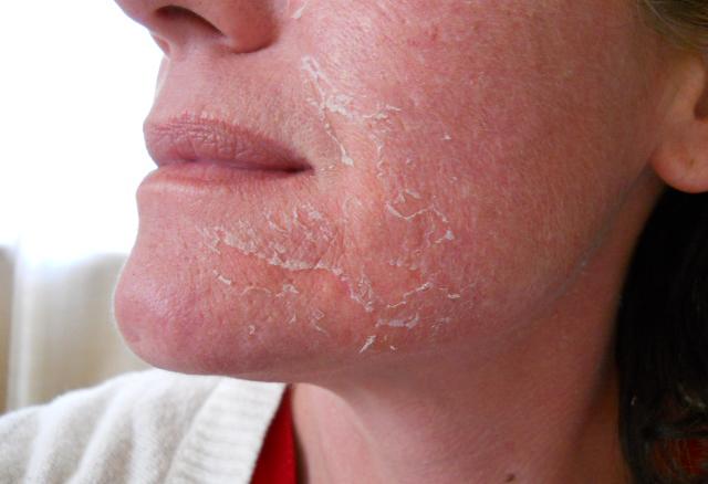 Шелушение кожи лица после пилинга