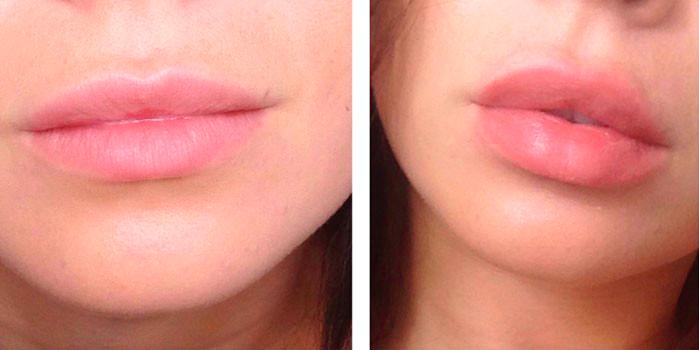 Увеличение губ при помощи контурной пластики