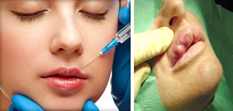 Увеличение губ при помощи биогеля