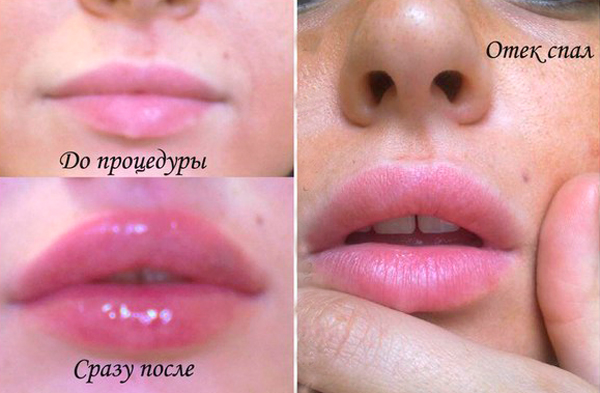 Реабилитационный период после коррекции губ