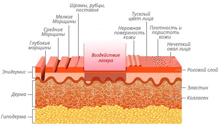 Действие лазера на шрамы и рубцы