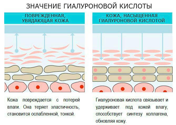 Влияние гиалуроновой кислоты на кожу во время биоревитализации