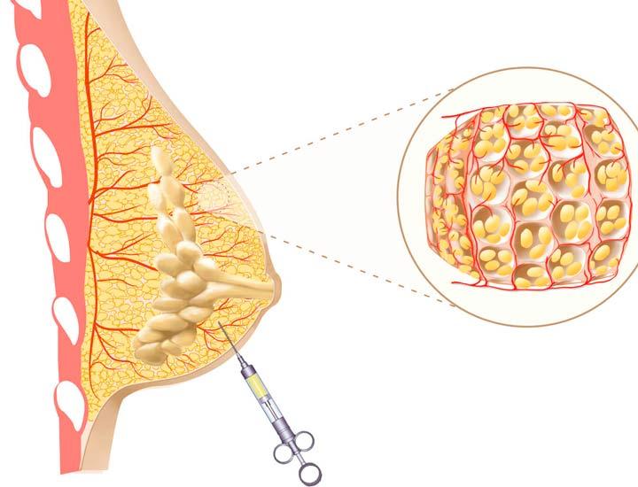 Процедура липофилинга груди