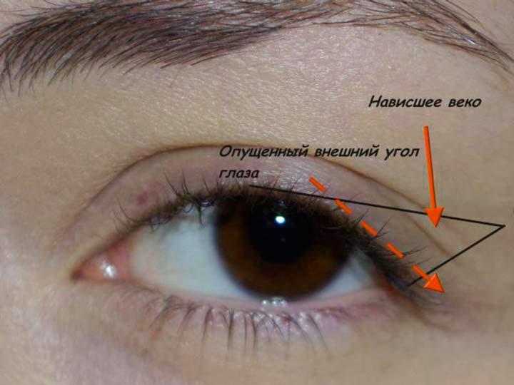 Возрастное опущение уголков глаз