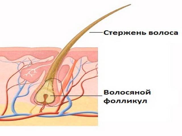 Псевдофолликулит из-за травмы волосяного фолликула