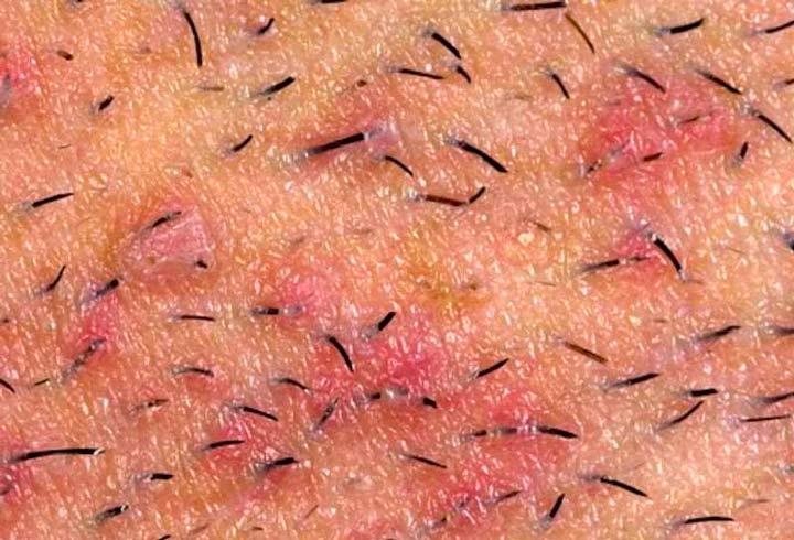 Диагностика врастания волоса в кожу