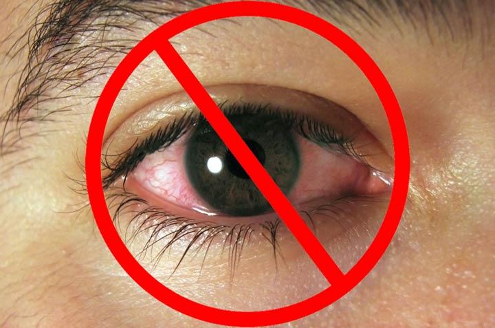 Воспалительное заболевание глаз