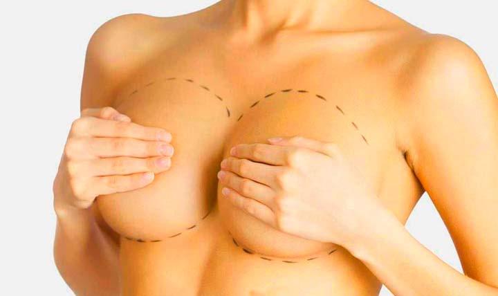 Мастопексия груди