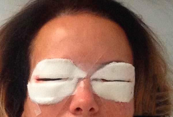 Повязка на глазах после блефаропластики