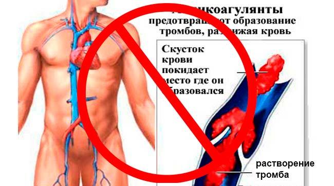 Запрещено применение перед процедурой ввода филлеров препаратов, разжижающих кровь