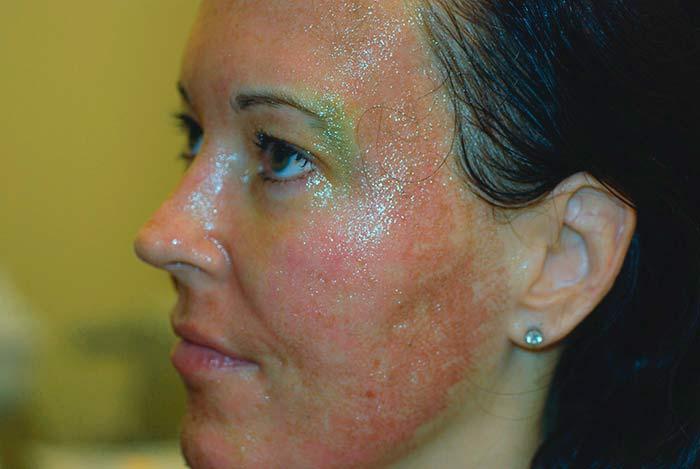 Отек и воспаление кожи после пилинга