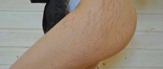 Послеродовые растяжки на коже