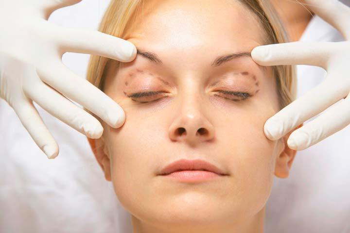 Разметка кожи перед операцией по блефаропластике