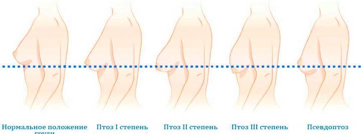 Основные стадии мастоптоза груди