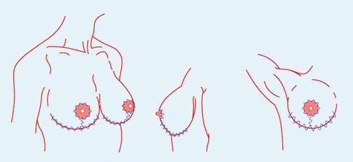 Т-образная подтяжка груди