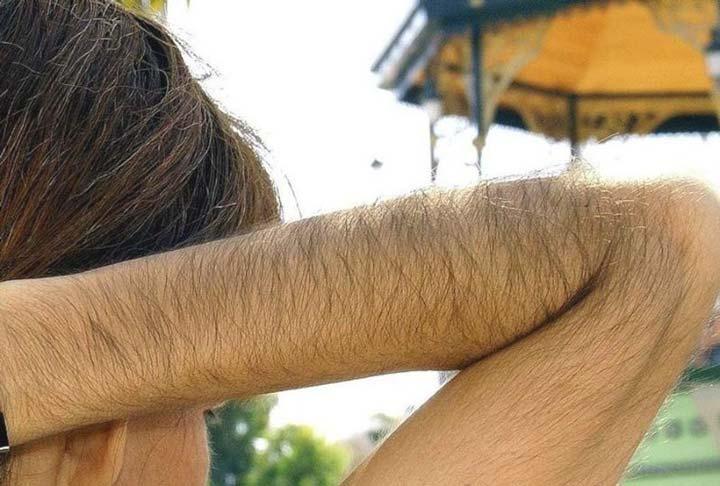 Повышенняа растительность волос на теле
