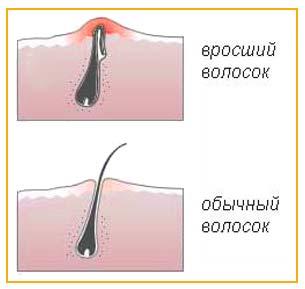 Волос, вросший в кожу