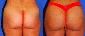 До и после липофилинга ягодиц