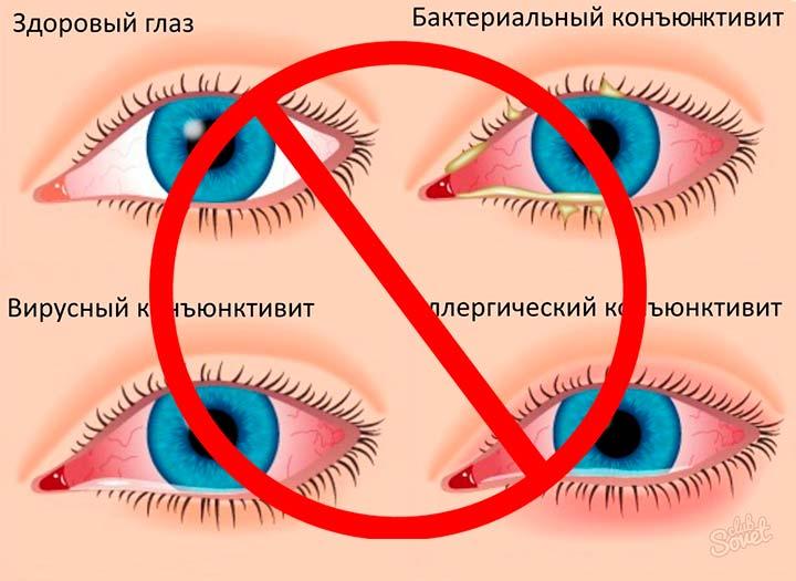 При заболеванияхз глаз противопоказано проведение блефаропластики