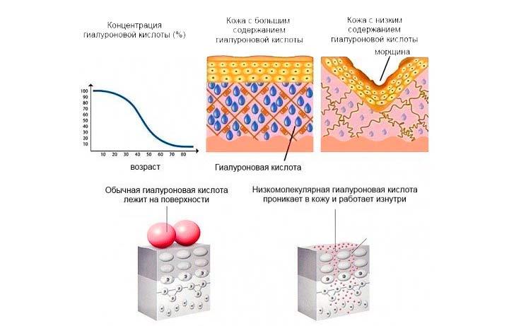 Гиалуроновая кислота в основе препарата Сурджидерм