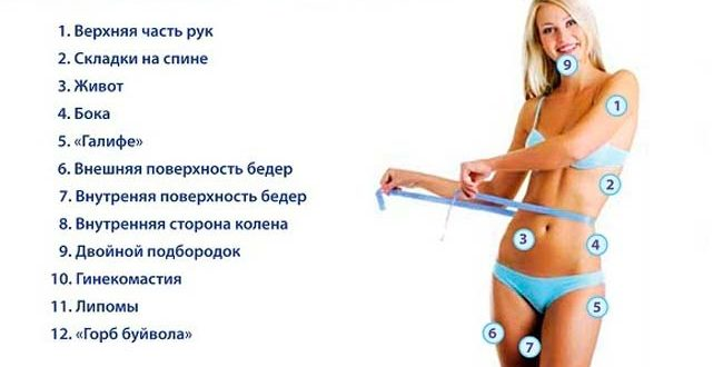 Основные зоны на теле, которые подлежат коррекциии Аквалисом