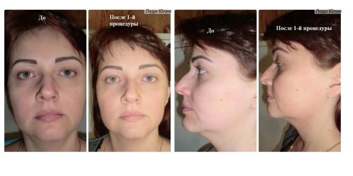 Фото в анфас и против до и после лифтинга