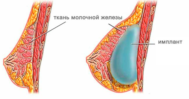 Установка импланта под молочную железу