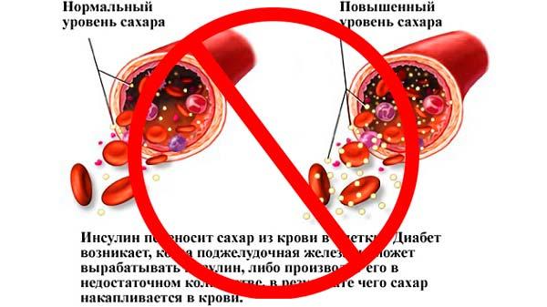 Нельзя делать биополимерное увеличение губ при повышенном сахаре в крови
