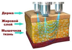 Схема воздействия на кожу при рф лифтинге