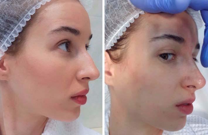 Эффективность безоперационной ринопластики носа