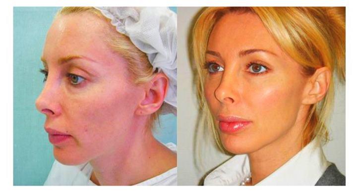 Фото до и после изменения овала нитями