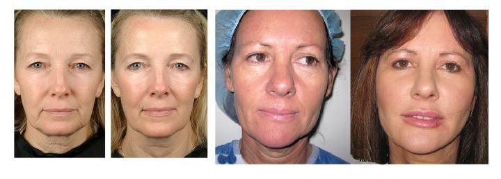 2 женщины до и после лифтинга
