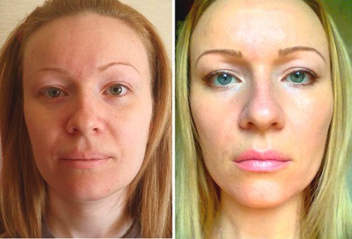Фото лица до и после лифтинга
