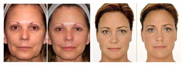 Фото 2-х женщин до и после процедуры рф лифтинга